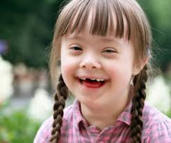 down syndrome 1